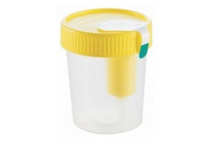 Greiner Bio-One™ Urine Collection Beaker, Sterile with Integrated Transfer Device, 100mL Case of 200