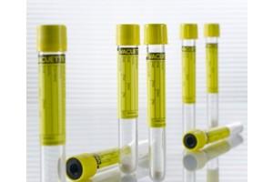 Greiner Bio-One VACUETTE Urine CCM Tubes, Non-ridged, Yellow cap; Black ring, 4.0mL, Round Bottom, Sterile, Pack of 50